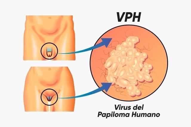 VPH - ETS
