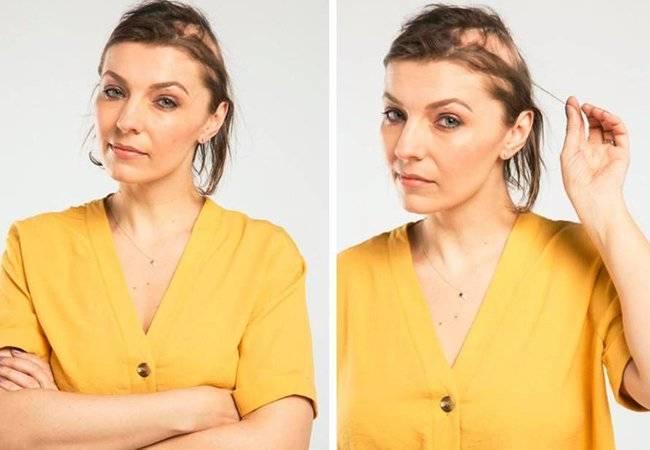 mujer pierde cabello estres boda alopecia